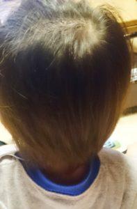 子供の髪の毛後ろビフォア